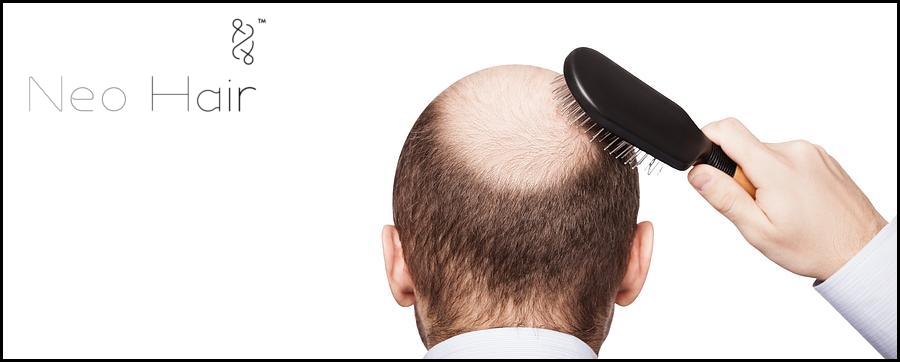 Alopecia en monterrey