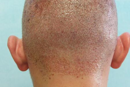 Hair Transplant in Mexico - Fast recovery