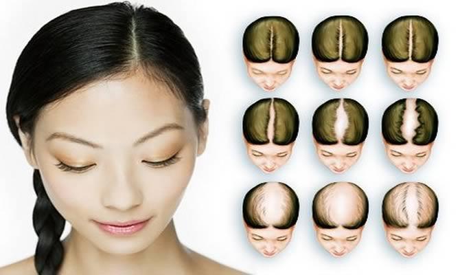 Tratamiento para crecer el cabello