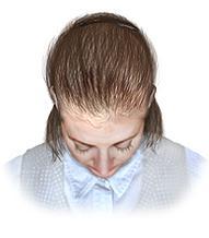 alopecia androgenica mujeres