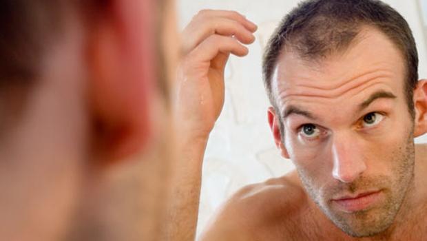 Causas de la caída de cabello