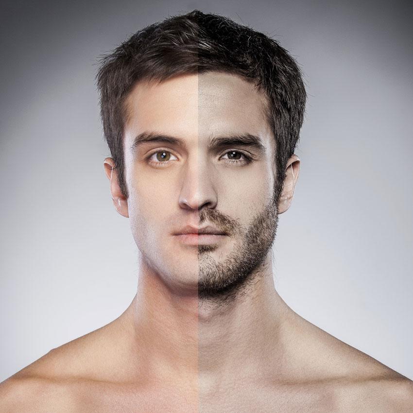 Injerto de barba precio