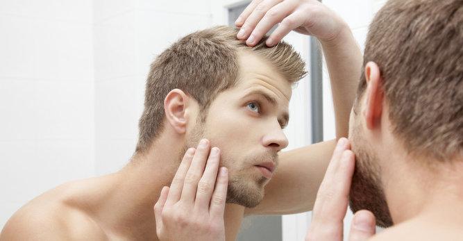 Caída de cabello hombres