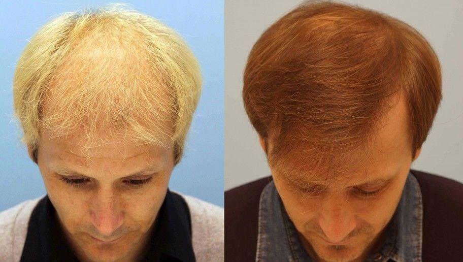 Injerto de cabello costo