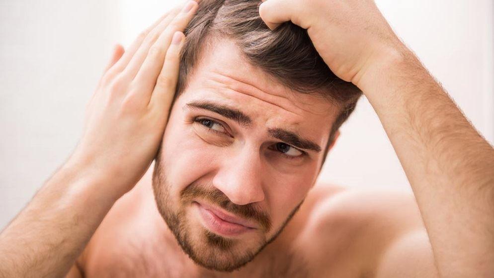 porque se cae el cabello en los hombres