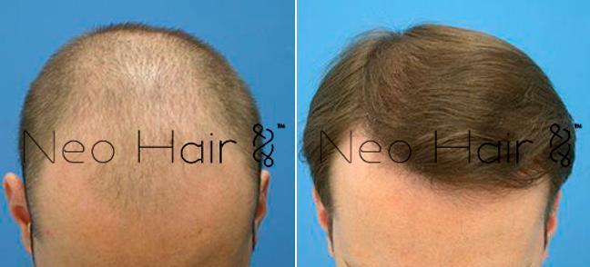 tratamiento para la alopecia masculina