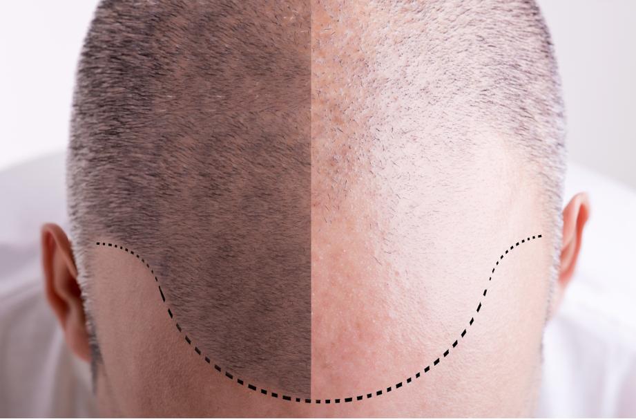 Transplante de cabello en monterrey - Técnica FUE