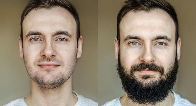 ¿Cuánto cuesta un injerto de barba?