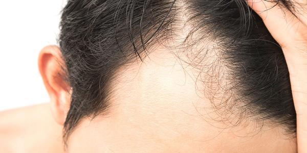 como curar la alopecia