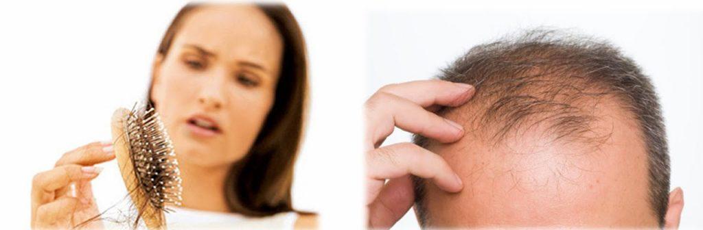 como evitar la perdida de cabello
