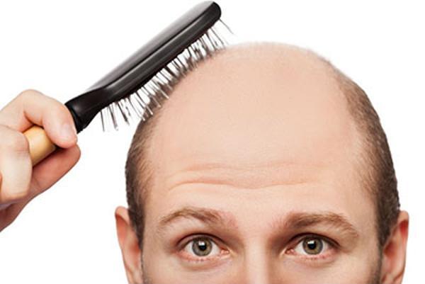 remedios para la alopecia
