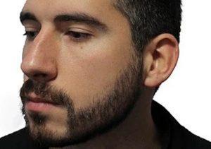 injerto de barba en monterrey