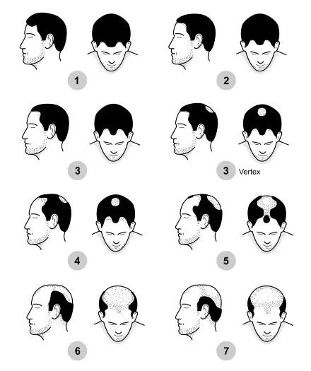 Etapas de la caida del cabello