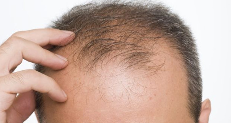 causas de calvicie