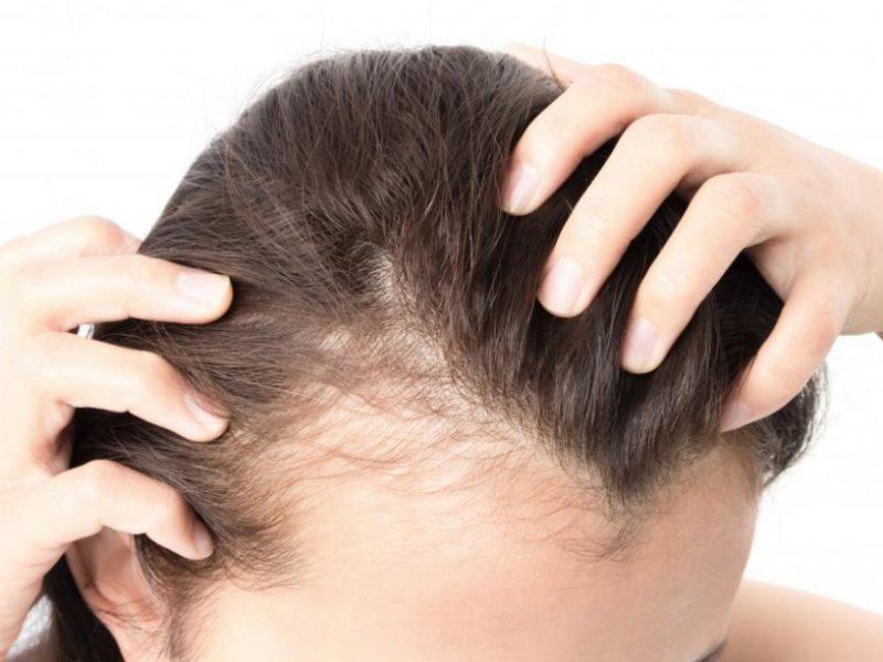 Como afecta la anemia al cabello