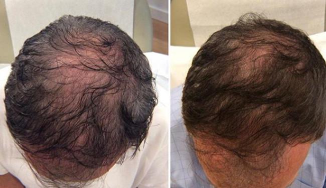 Tratamientos para la restauracion del cabello
