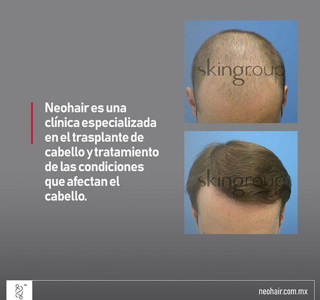 Clinica del cabello en Monterrey