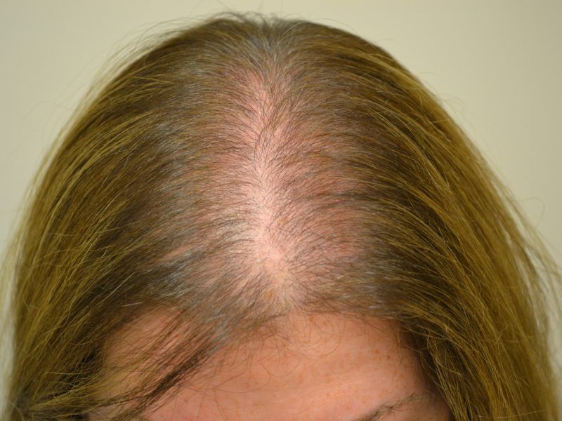 Alopecia femenina en Monterrey